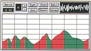 ВККЗ - Видеокомпьютерная коррекция зрения