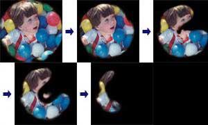 ГЛАУКОМА - Динамика стадий глаукомы от начальной до далекозашедшей