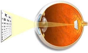 Рефракция глаза - патология рефракции глаза